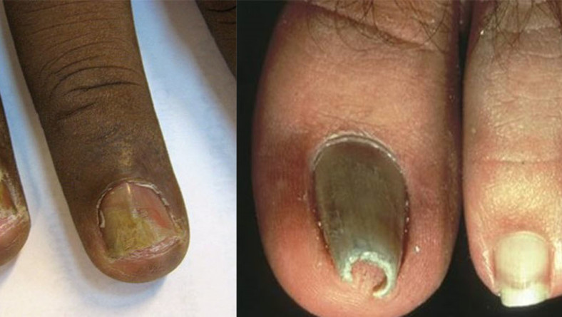 How To Prevent Bacterial or Fungal Nail Infections
