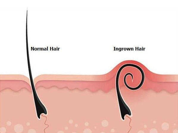INGROWN HAIR & HOW TO PREVENT THEM