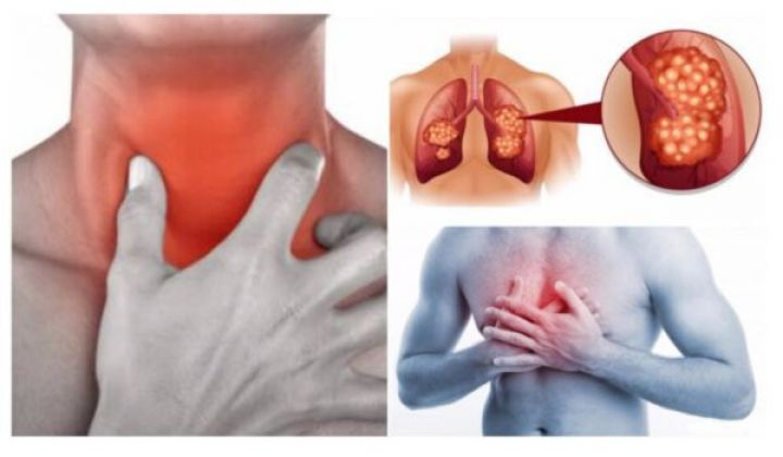 5 Early Warning Signs of Lung Cancer You Need to Know!