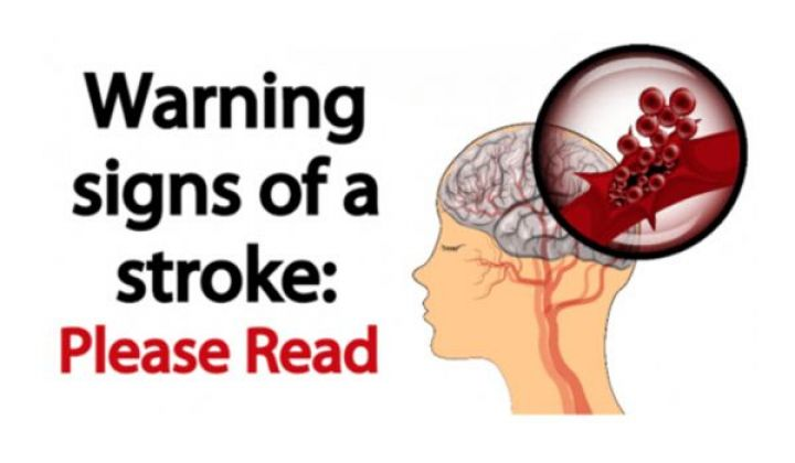 6 EARLY WARNING SIGNS OF STROKE EVERYONE SHOULD KNOW